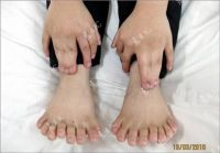 Chinese_boy_with_30_fingers_and_toes_5